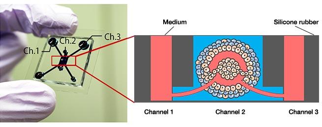 Figura 1. Dispositivo microfluídico e modelo de tumor.