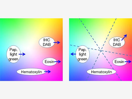 Figura 5 – Com o tradicional ajuste de cor (à esquerda), o melhoramento de vermelho para eosina afeta todas as outras marcações; o ajuste de cor multiaxial (à direita) permite otimização independente de cores para cada marcação