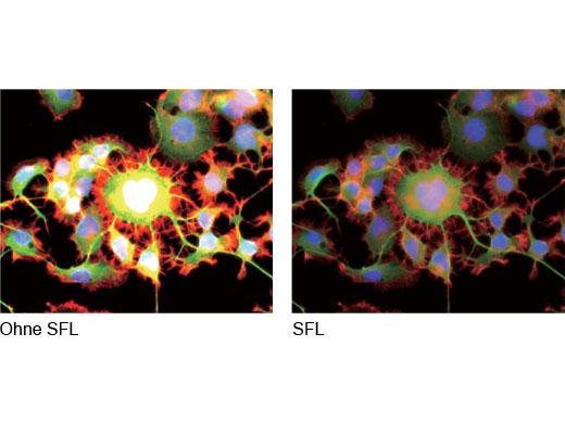 Korrekte Belichtung dank Optimierung im SFL-Modus (Super-Fluoreszenz)