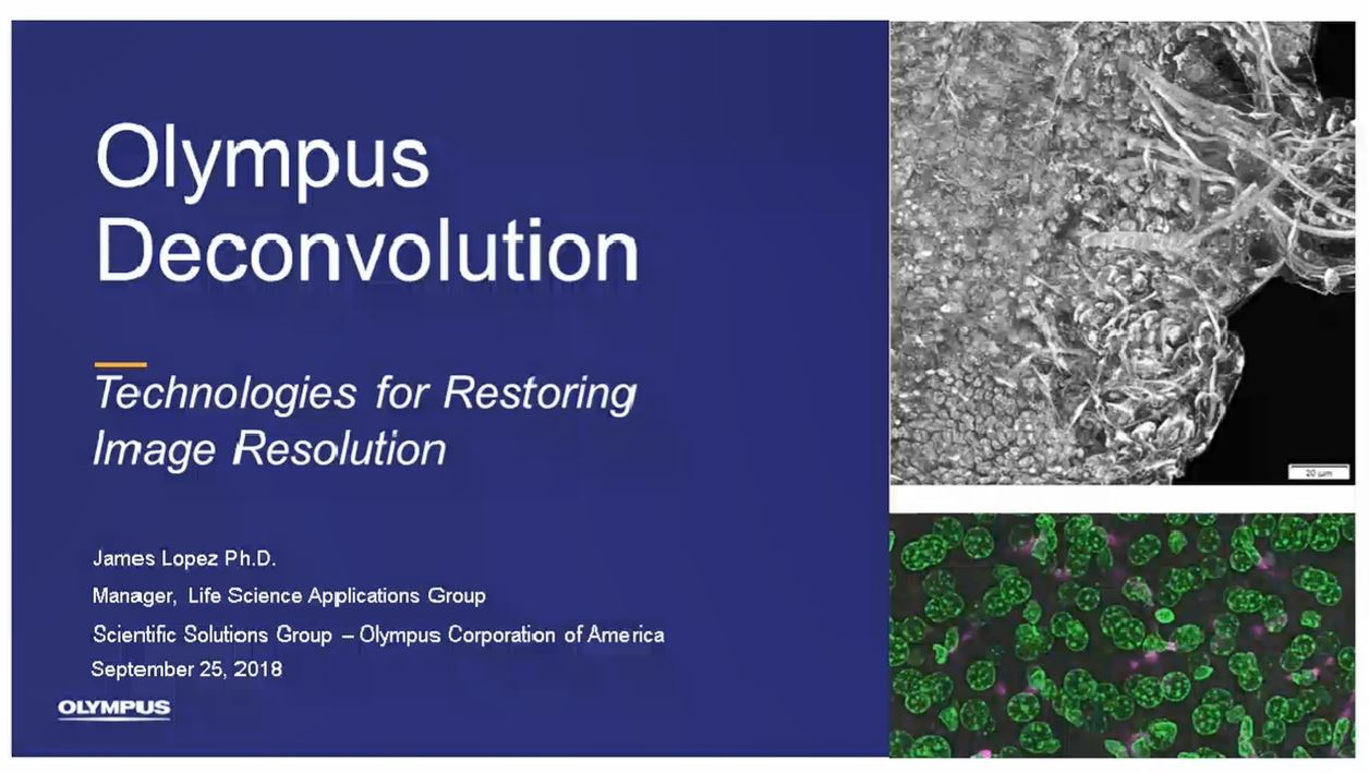 Olympus Deconvolution – Technologies for Enhancing Image Resolution