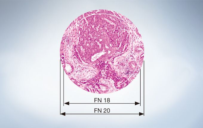 Microscope image of a tissue sample showing the difference between FN 18 and FN 20. FN stands for field number, which represents the diaphragm size of the eyepiece in mm and defines the image area of specimen.