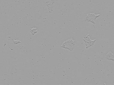 図3 同視野の経時変化の画像