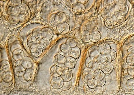 Cucumber Tapeworm (Dipylidium caninum)