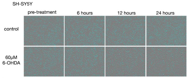Figure 3. Images of SH-SY5Y cells after 6-OHDA treatments.