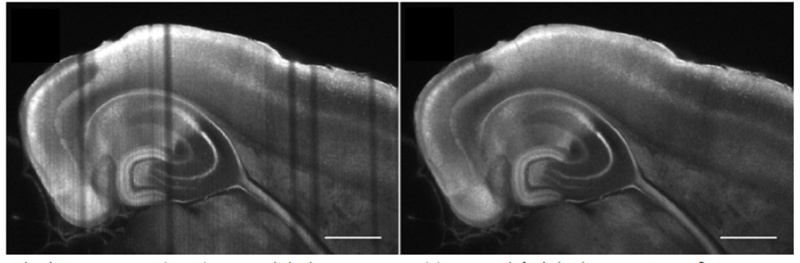 Comparison of striping artifacts with a selective plane illumination microscope system (SPIM) and a mSPIM system