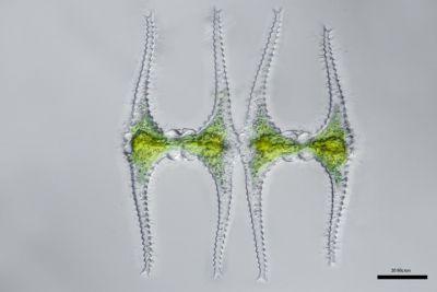 Two staurastrum under a microscope