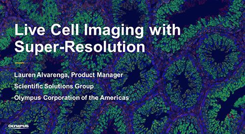 Live Cell Imaging with Super-Resolution